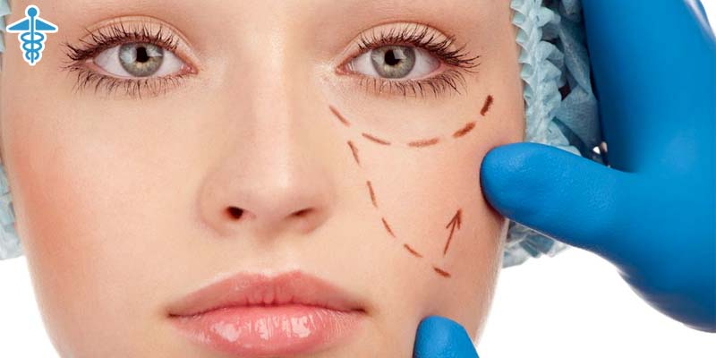 Scars and asymmetries for blepharoplasty and facelift